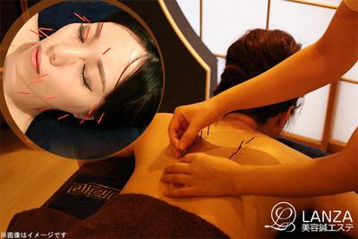 オーダーメイド美容鍼90分☆顔への美顔鍼・身体への鍼で身体の...