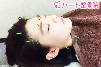 美容鍼灸トライアルコース☆お肌のハリ・つやが蘇る副作用のない...
