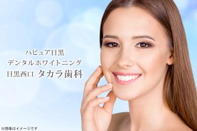 目黒西口 タカラ歯科/ハピュア目黒 デンタルホワイトニング